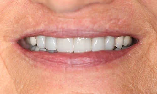 Closeup of smile after new dental crown and porcelain veneers