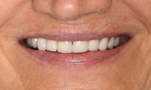 Closeup of smile with old, discolored dental crown