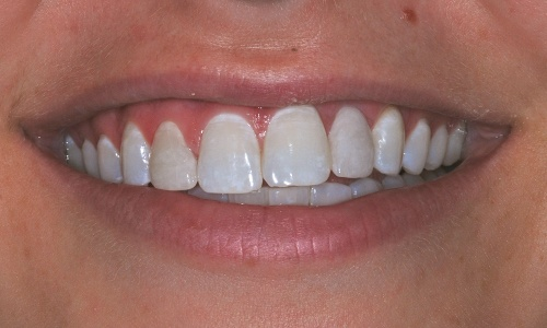 Smile with dental implant replaced teeth and porcelain veneer correction