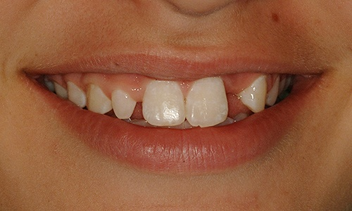 Patient's smile with missing and undersized teeth