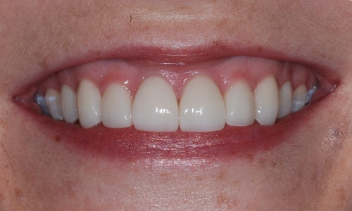 Flawless smile with custom porcelain veneers