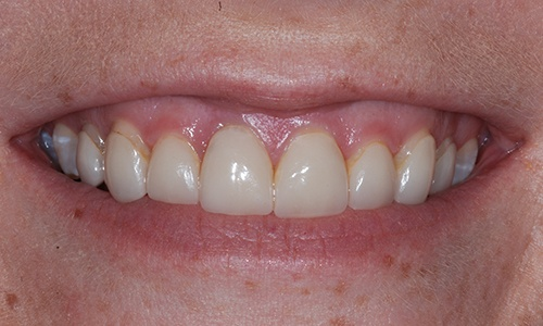 Older dental bonding treatment that has discolored
