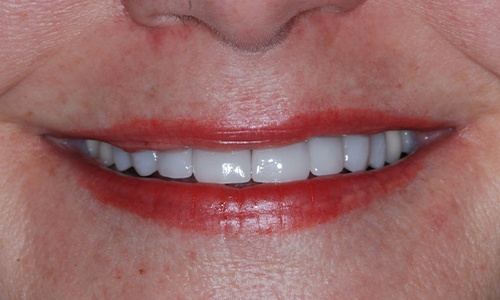 Flawless smile after full mouth rehabilitation