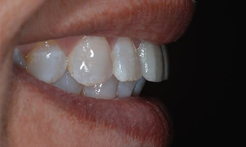 New dental crowns recreating beautiful smile
