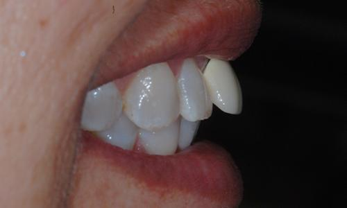 Dental restoration placed angling outward