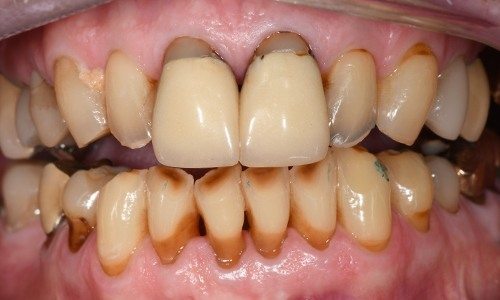 Smile with several cosmetic and functional oral health concerns