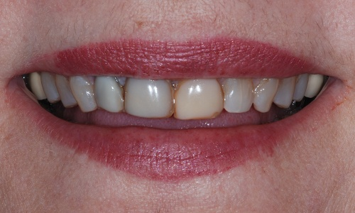 Smile with discolored dental bonding