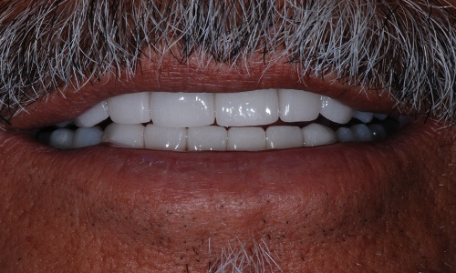 Smile repaired with porcelain crowns