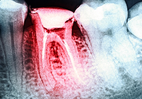 X-ray of damaged tooth before extraction
