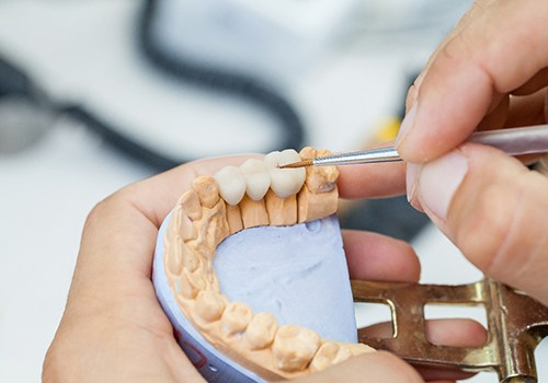 A dental lab technician creating a dental bridge for a patient who has lost multiple teeth