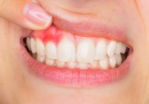 Smile with inflamed and red gum tissue