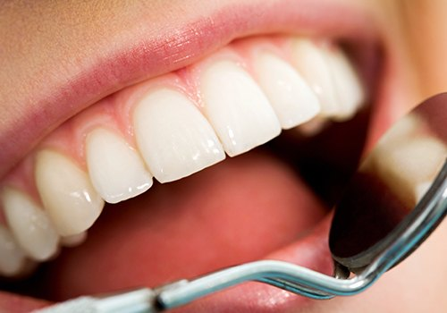 Patient's healthy smile after fluoride treatment