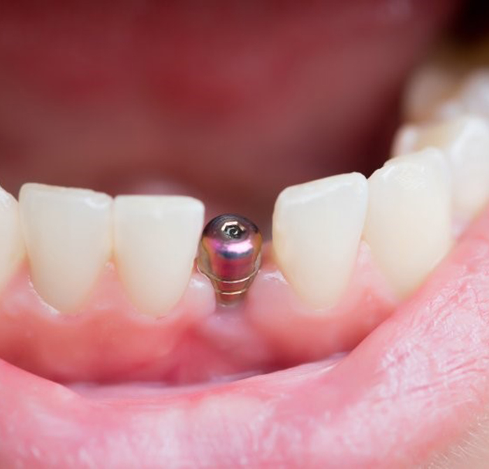 A closeup of a mouth with a single tooth implant.