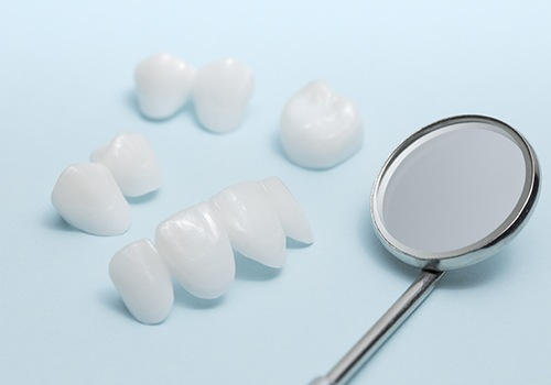 Different types of porcelain veneers before placement