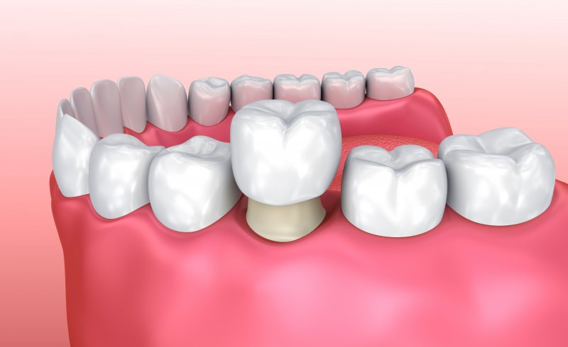 Placing a dental crown on a tooth